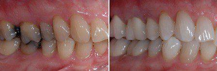 teeth bleaching dentists burien