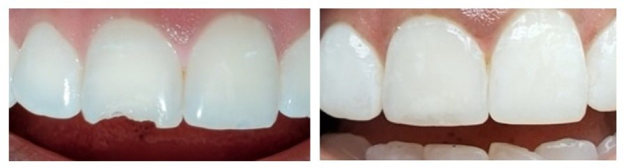 Transform your smile for the New Year