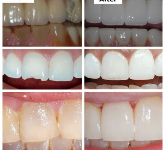 Transform Your Smile