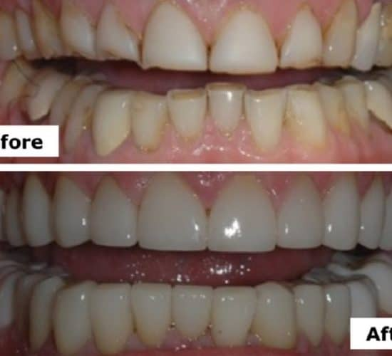 Porcelain crowns transform Bruce's Smile