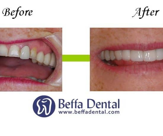 Transform Your Smile this Summer