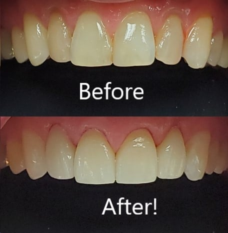 Small Cosmetic dental tweaks work wonders