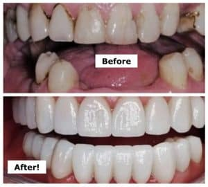 Cosmetic Dental Treatments for Oral Cancer
